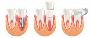 dental implant services in Lahore