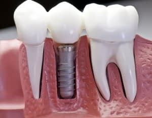 Dental Implants surgery in Lahore by Dental Experts