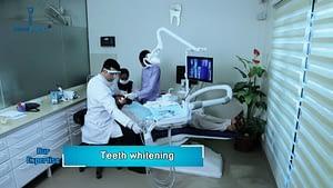 Teeth-Whitening-Treatment-in-Dental-Expert